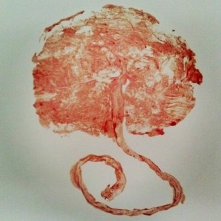 placenta print by, Brandy